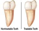 Cracked-Tooth-Before-Image