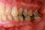Traditional-Periodontal-Therapy-Before-Image