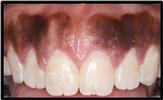 Aesthetic-Crown-Lengthening-After-Image