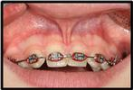 Frenectomy-Before-Image