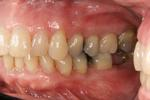 Traditional-Periodontal-Therapy-After-Image
